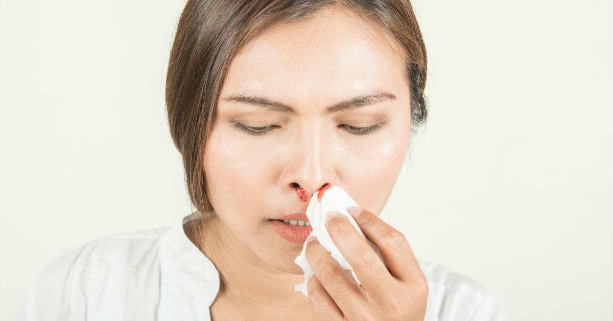 Як швидко зупинити кров з носа, — поради лікаря