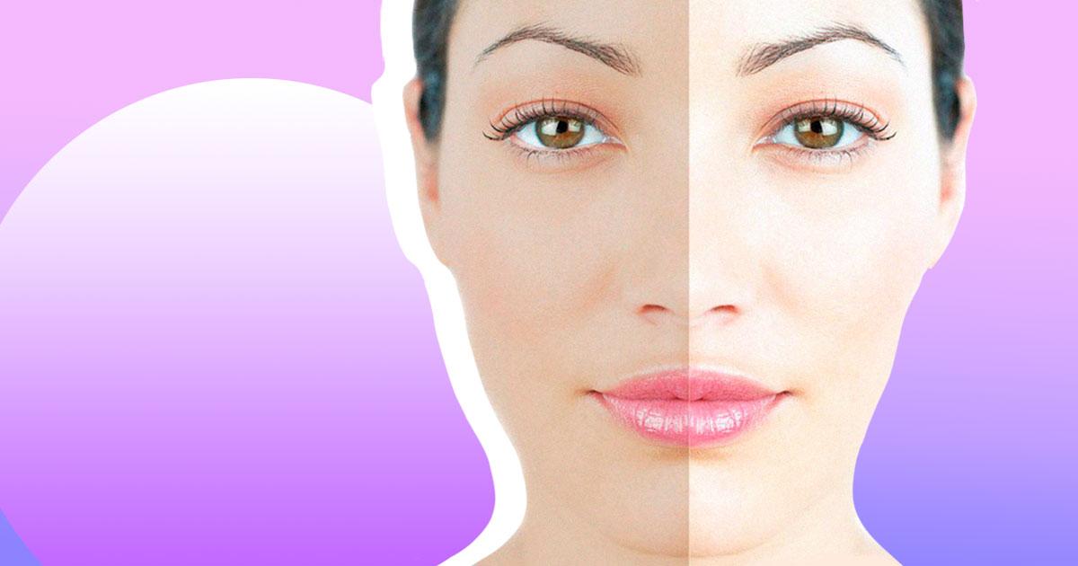 Як освітлити шкіру на різних ділянках: від особи до інтимних зон