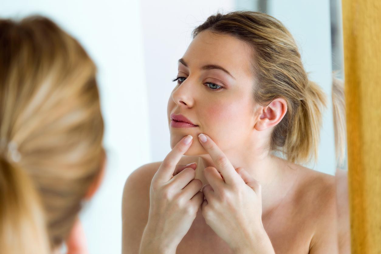Супер засіб від прищів: 12 методів лікування акне