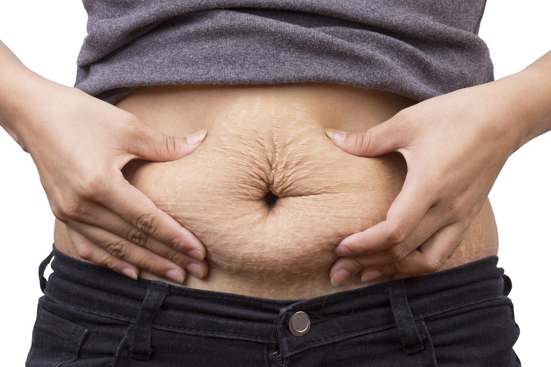 10 способів вирішити питання розтяжок на животі