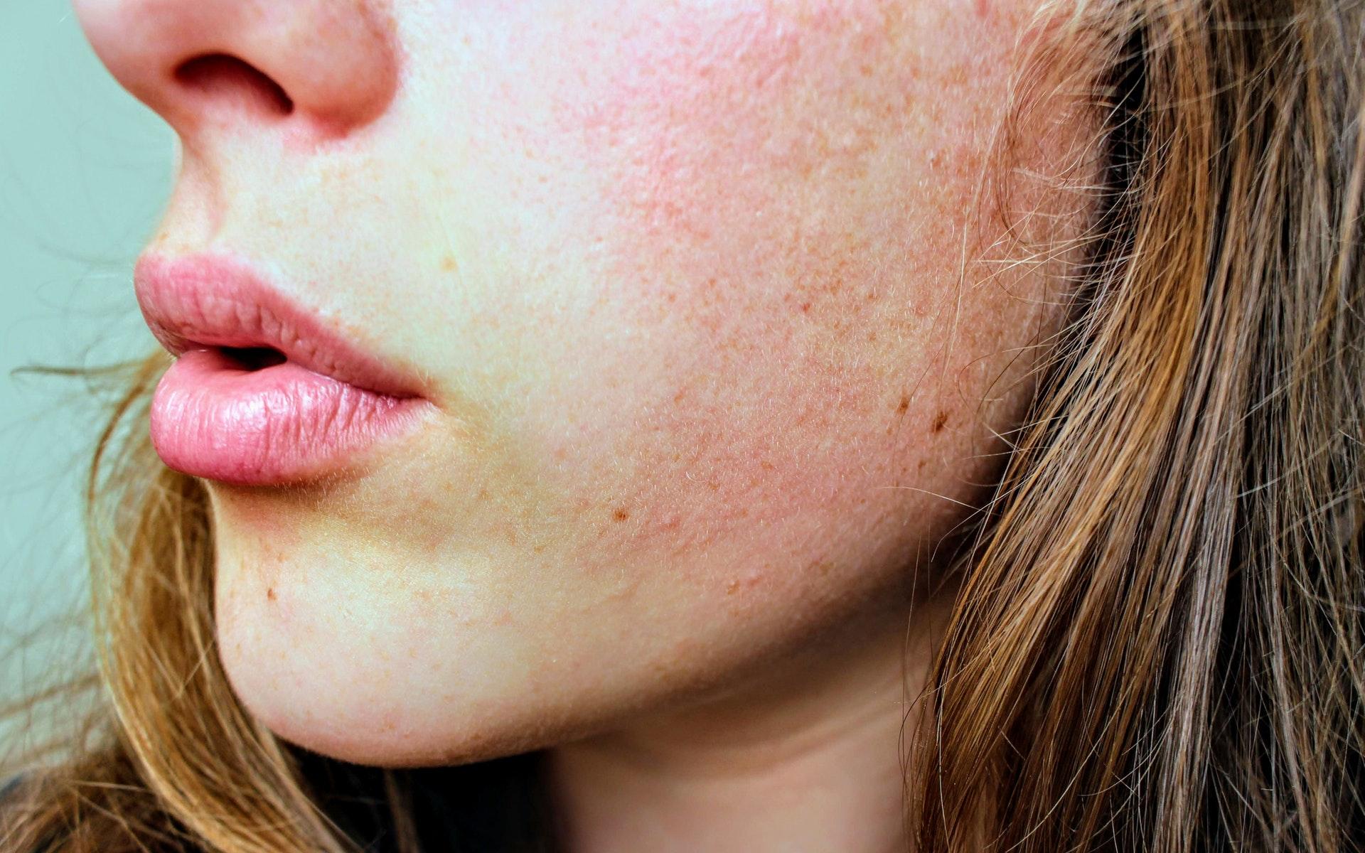 8 захворювань шкіри, які не можна лікувати самостійно