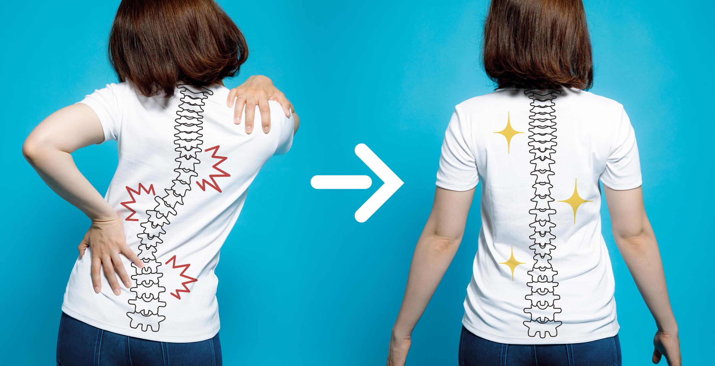 Корисні тренування для хворих сколіозом